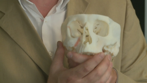 3D printing drastically changing surgery