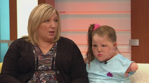Mum of Meningitis B sufferer speaks of daughters illness