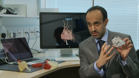 Doctors use 3D printer to treat woman with heart defect