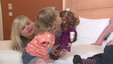 Quadruple amputee toddler gets a special doll